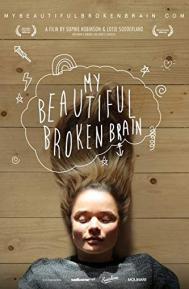 My Beautiful Broken Brain poster free full movie